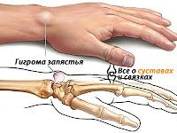 Гигрома кисти Харьков, Удаление гигромы и лечение в Харькове