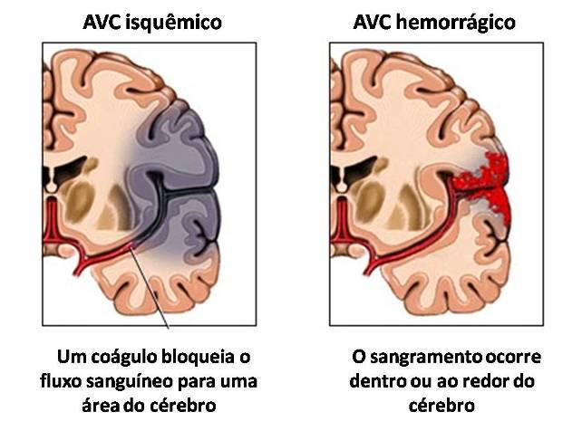 SECUELAS DE ACV HEMORRAGICO PDF DOWNLOAD