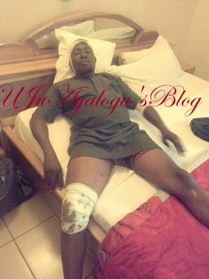 Armed Thugs Strip And Beat Kogi Lawmaker At The State House Of Assembly (Photos)