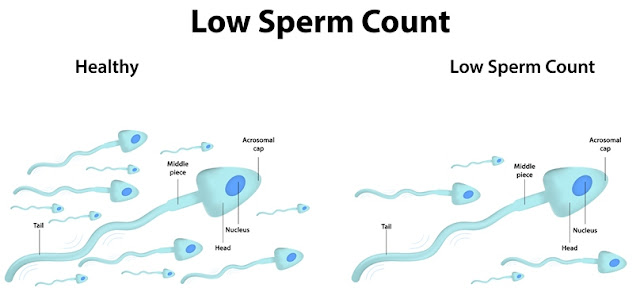 Not all fertile men can donate sperm