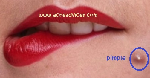 The Causes of Pimples on the Face and the Treatment