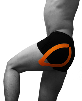 Ares Kinesiology Tape Arestape Applications Hip 1