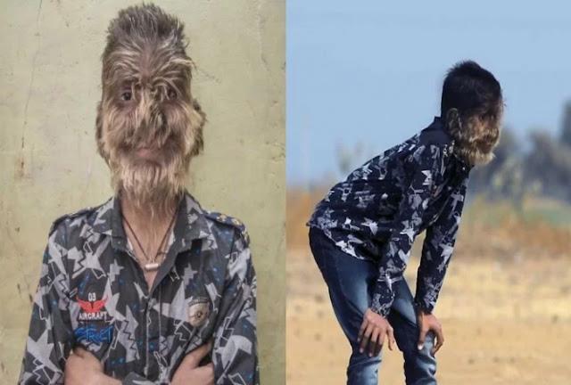 13 साल के लड़के को हुई अजीबोगरीब बीमारी, पूरे चेहरे पर उग आए बाल