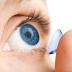Inilah Cara Merawat Lensa Kontak Agar Tetap Aman Digunakan