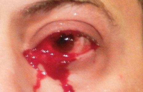 Kan Gözyaşları - Kan Ağlamak