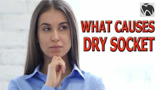 What Causes Dry Socket
