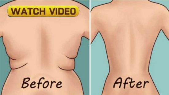 How To Get Rid of The Folds On Your Back And Sides in 21 Days