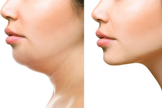 How To Reduce Face Fat In 7 Days