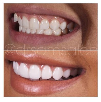 veneers, dr sam Saleh, ora dentistry spa, smile makeover, Beverly Hills dentist, smile before and after, veneers before and after, veneers journey, veneers price, veneers cost, high canine tooth, snaggle tooth, Los Angeles veneers, porcelain veneers,