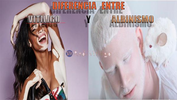 Diferencia-entre-vitiligo-y-albinismo