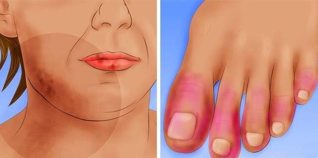 9 dari 10 Wanita Positif Terserang Lupus, Seperti Apa Gejala Yang Wajib Anda Ketaui, Terutama Kaum Wanita !!