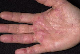Mengobati Gatal-Gatal Pada Telapak Tangan