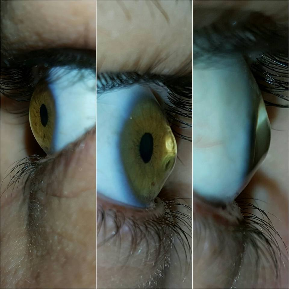 Keratoconus, conical cornea - The picture on the left is my left eye and the other two pictures are my right eye which is the worst one.