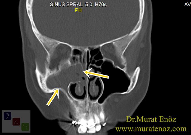 Sinüzit belitileri - Sinüzite bağlı baş ağrısı - Kronik sinüzit  - Sinüzit ve migren baş ağrısı nasıl ayırt edilir? - Sinüzit belirtleri - Baş ağrısı - Sinüzit tanısı - Nazal polip - Paranazal sinüs tomografisi