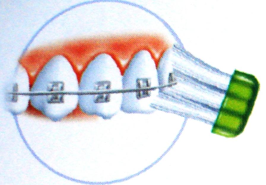 5ad7f7a62 Escova ortodôntica. Utilizada em caso de uso de aparelho ortodôntico fixo.  Apresenta uma diminuição na altura da coluna de cerdas centrais (canaleta  ...