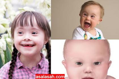 Penyebab Lahir Anak Down Syndrome! Ayo Nikah Mudah