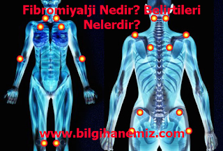Fibromiyalji Nedir? Belirtileri Nelerdir?