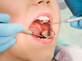 Consecuencias de una maloclusión. Dentista profesional en Zaragoza