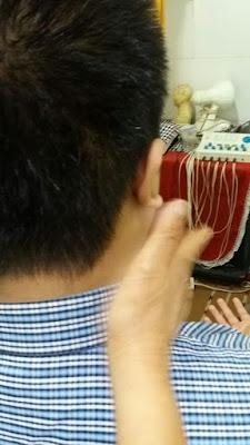 Cara Mengobati Sakit Punggung Dengan Tusuk Jarum di Tangerang