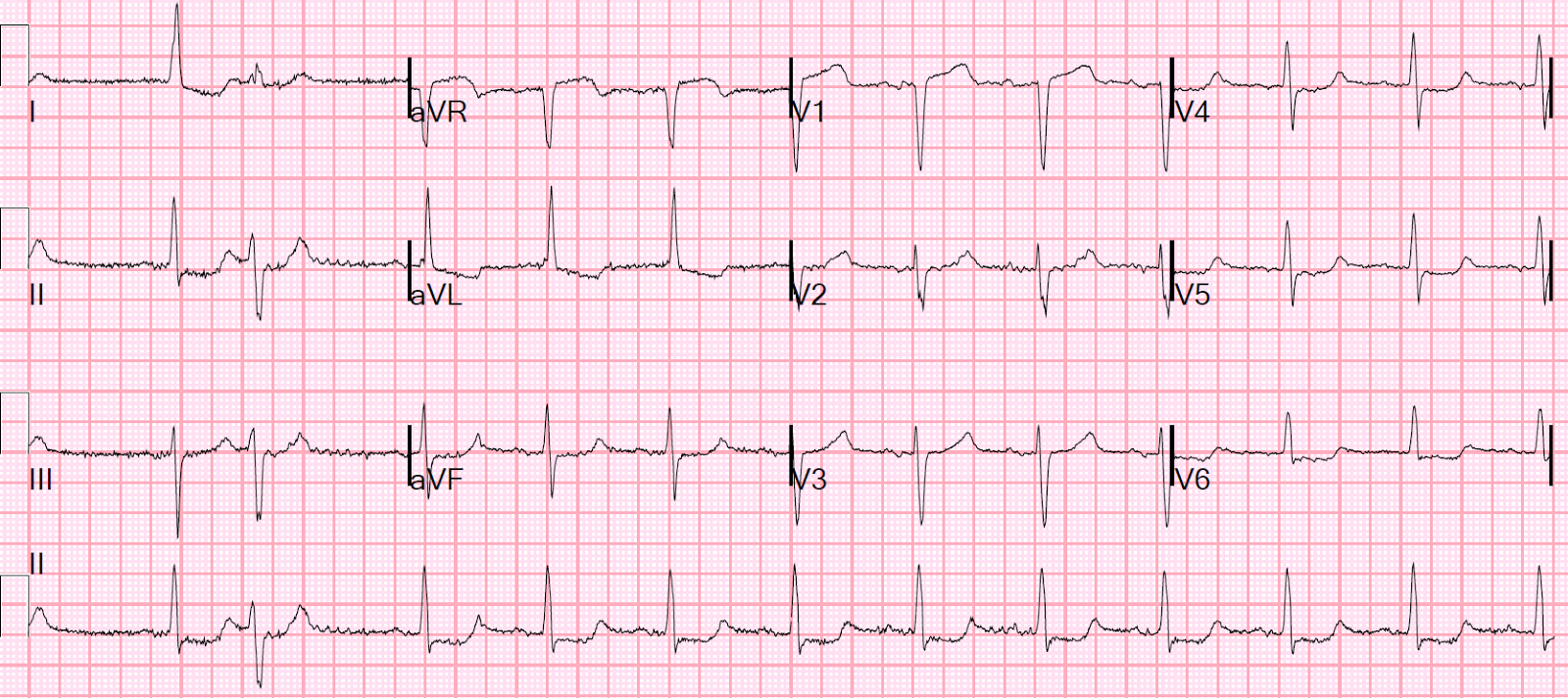 Dr. Smith's ECG Blog: Chest Pain and Cardiogenic Shock ...