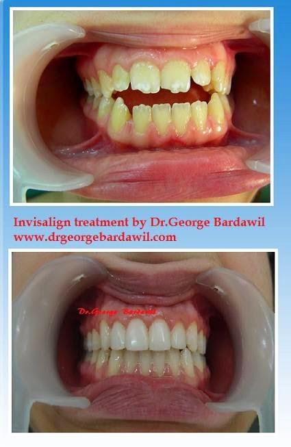 Open bite -treated by Invisalign- Dr. George Bardawil,Platinum Provider