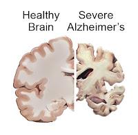 Azeite de Oliva e Alzheimer