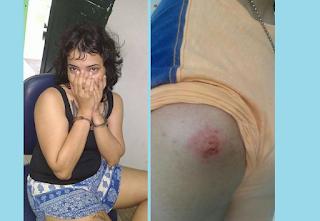 Mulher morde policial civil após receber voz de prisão em Currais Novos