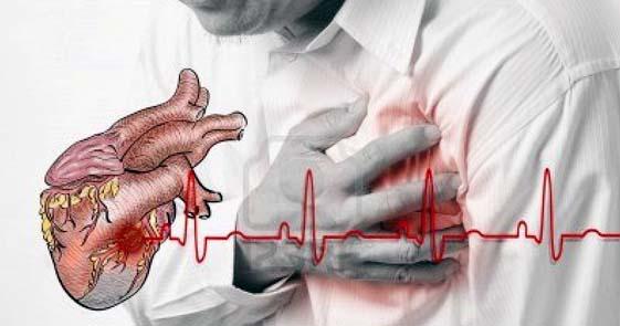 Pengobatan Untuk Mengatasi Jantung Berdebar Secara Alami, Aman Tanpa Efek Samping