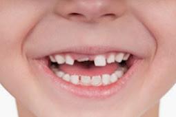 Est-il possible de repousser les dents?