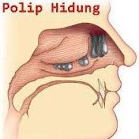 """""""polip"""""""