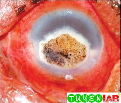 Fig. 2.13: Fungal corneal ulcer caused by the dematiaceous fungi and the pigmentation appear as leopard like brown spots on the ulcer