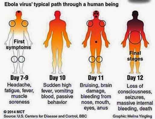 อาการของโรคไวรัสอีโบลา
