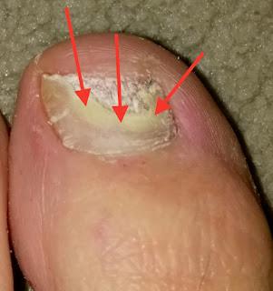 Harte Fußnägel Ursache Fußnagelpilz Jenn Cosmetic.