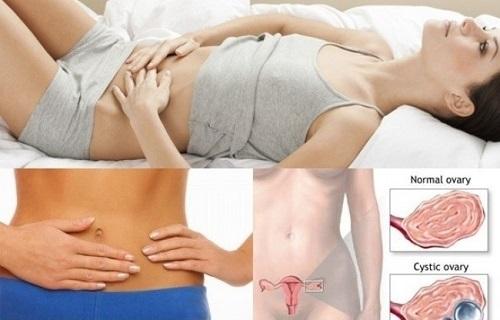 Đừng để mất chức năng sinh sản vì bệnh viêm cổ tử cung-https://phuongphapphathainoikhoa