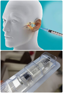 Cost of eardrum hole surgery without packing - PureRegen Gel OTOL