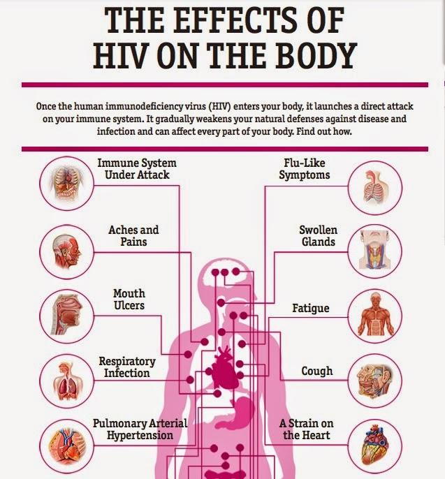 History of HIV/AIDS Essay