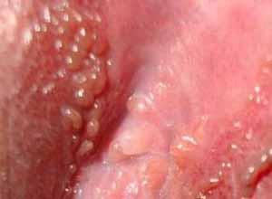obat daging tumbuh di sela - sela vagina