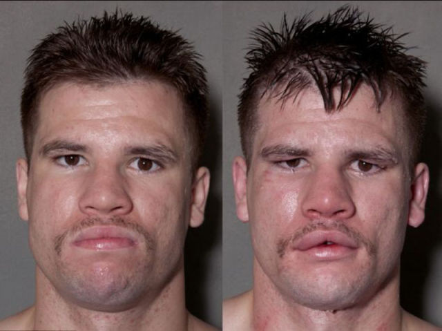 A Boxer's Face Before And After Taking A Few Punches (11 Pics)
