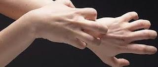 Kaki Dan Tangan Sering Gatal