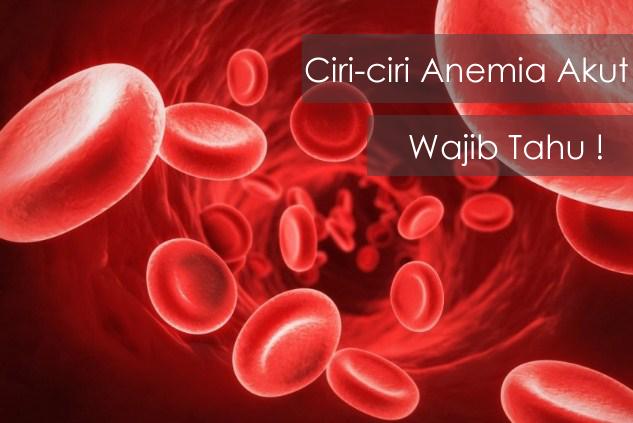 Ciri-ciri Anemia Akut