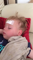 blogger baby after his head injury