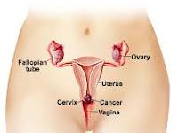 Cara ampuh Mengharumkan Vagina