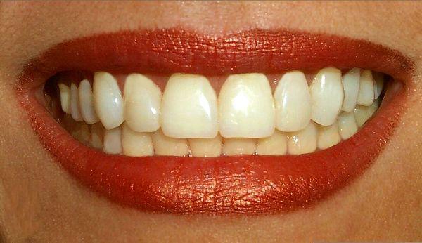 Cara Untuk Memutihkan Gigi Yang Sudah Kuning Cara Memutihkan Gigi