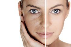 Cara Mengatasi Masalah Kulit Kusam Dan Gelap Pada Wajah Cara Mengatasi Masalah Kulit Kusam Dan Gelap Pada Wajah