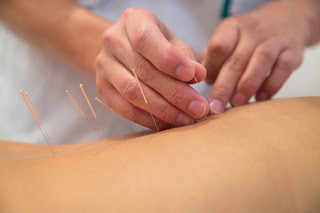 6 Questions About Acupuncture You're Afraid to Ask - Academy Massage Therapy - Massage Therapist Winnipeg