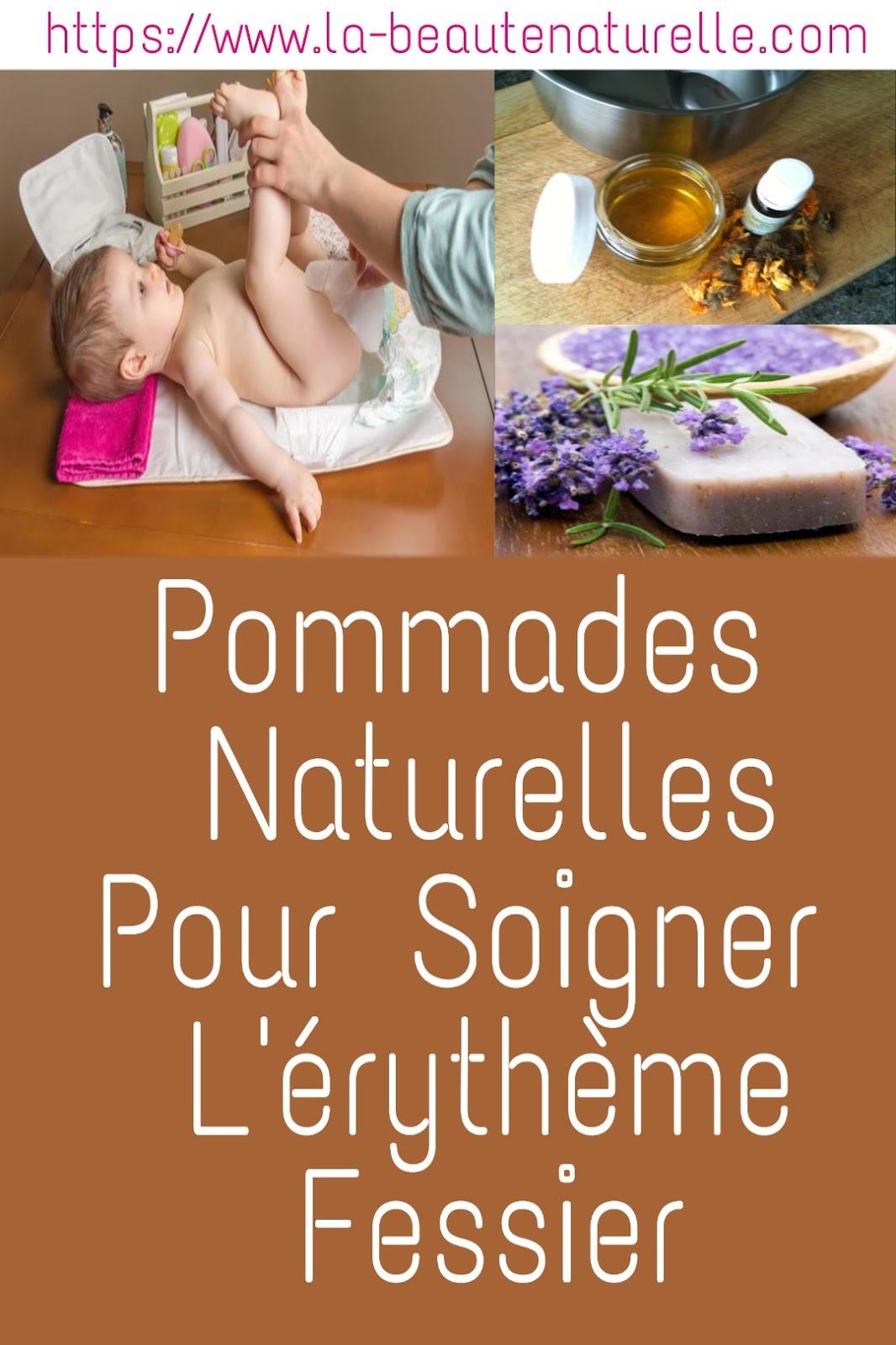Pommades Naturelles Pour Soigner L'érythème Fessier