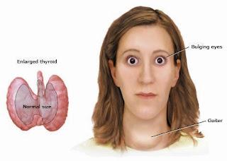 obat herbal untuk menyembuhkan hipotiroidisme