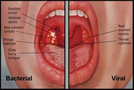 Cara Mengobati Radang Tenggorokan Akibat Virus