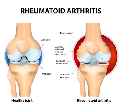 Rheumatoid arthritis treatment kerala