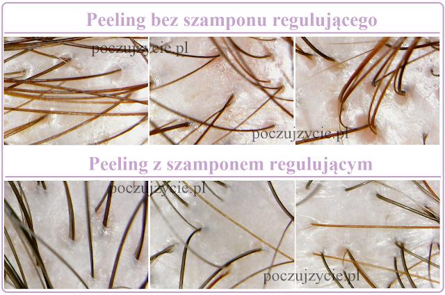 Peeling skóry głowy 1